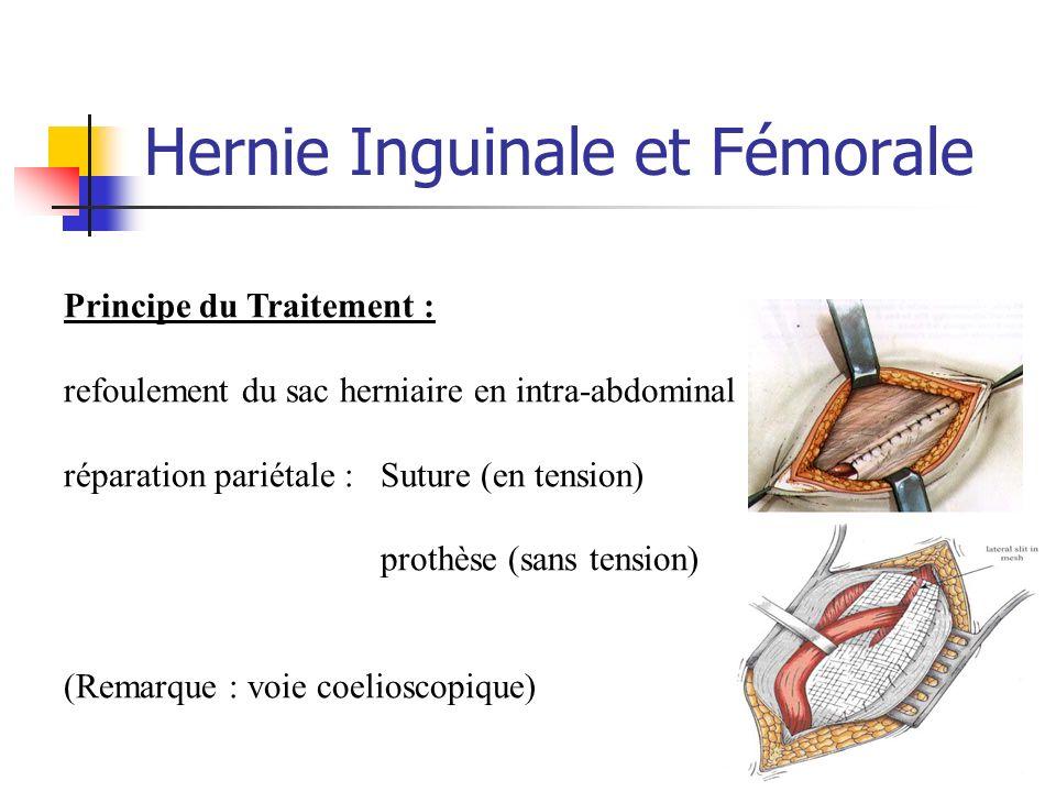 Hernie Inguinale et Fémorale