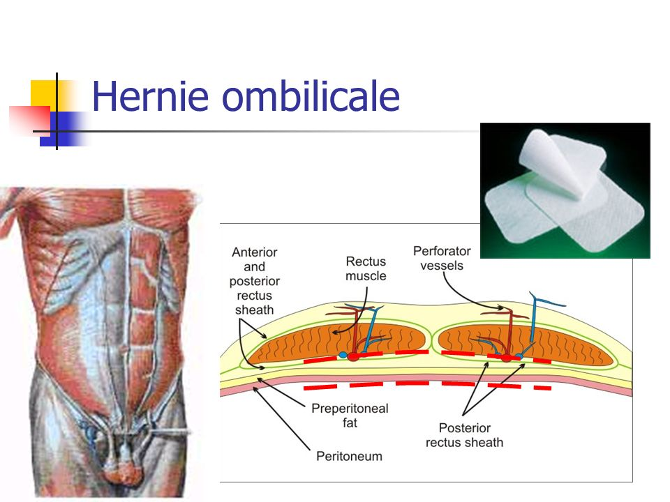 Hernie ombilicale