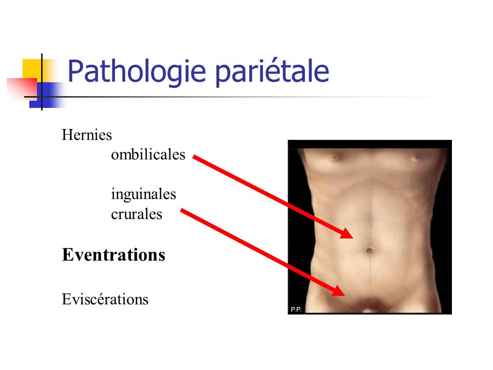 Pathologie pariétale Eventrations Hernies ombilicales inguinales
