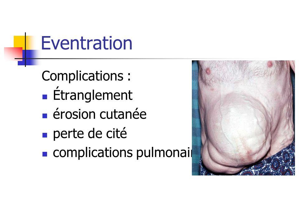 Eventration Complications : Étranglement érosion cutanée perte de cité