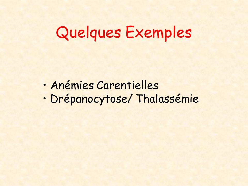 Quelques Exemples Anémies Carentielles Drépanocytose/ Thalassémie