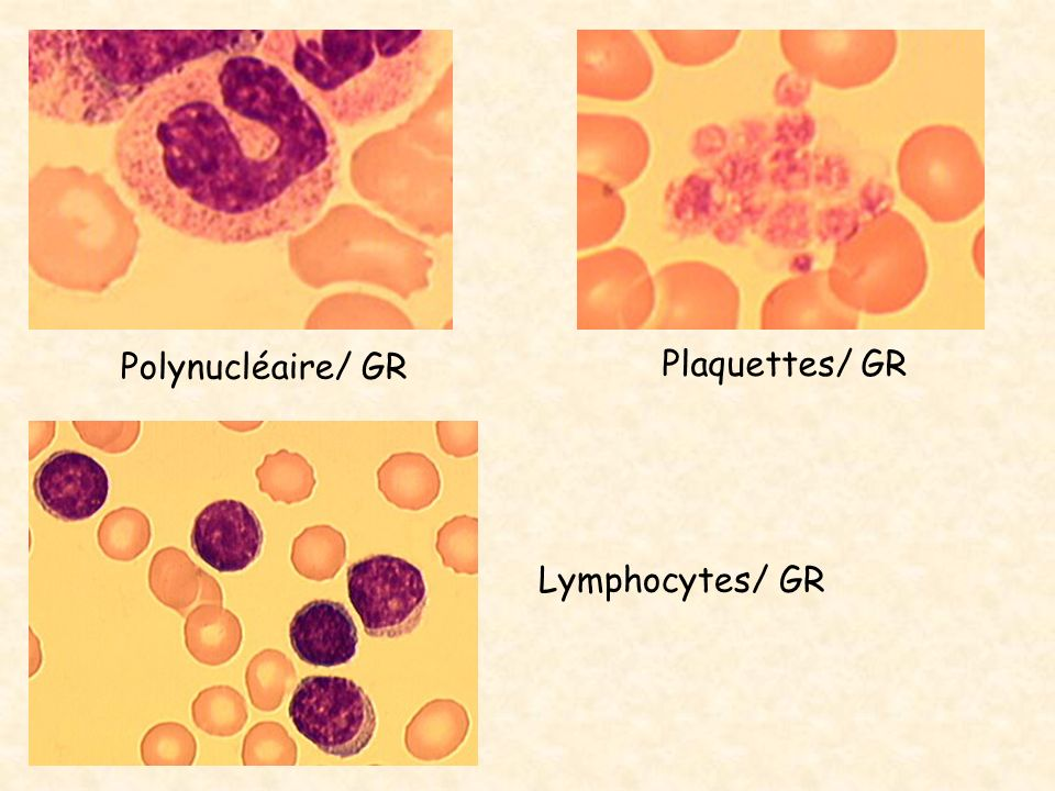 Polynucléaire/ GR Plaquettes/ GR Lymphocytes/ GR