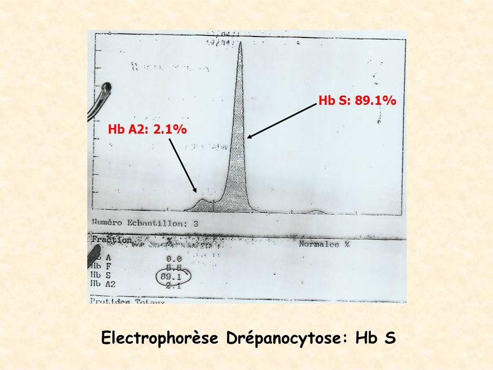 Electrophorèse Drépanocytose: Hb S