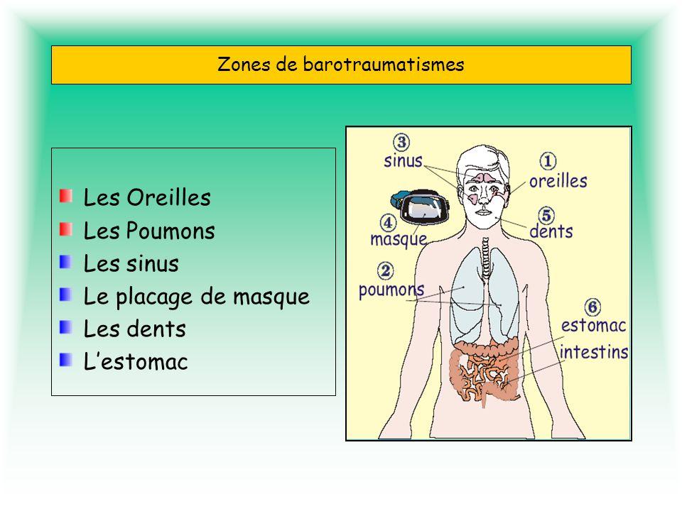 Zones de barotraumatismes