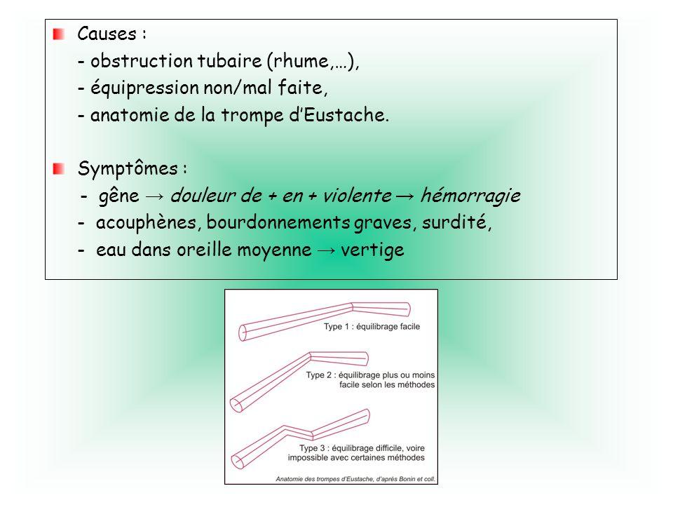 Causes :- obstruction tubaire (rhume,…), - équipression non/mal faite, - anatomie de la trompe d'Eustache.