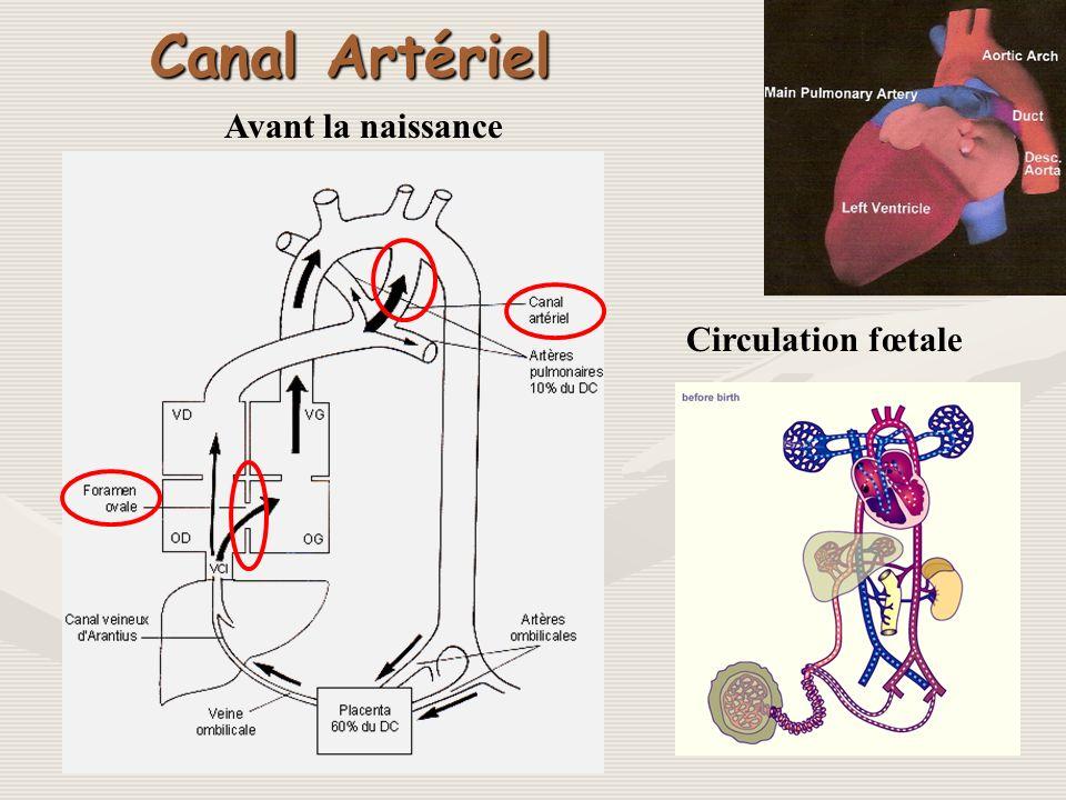 Canal Artériel Avant la naissance Circulation fœtale