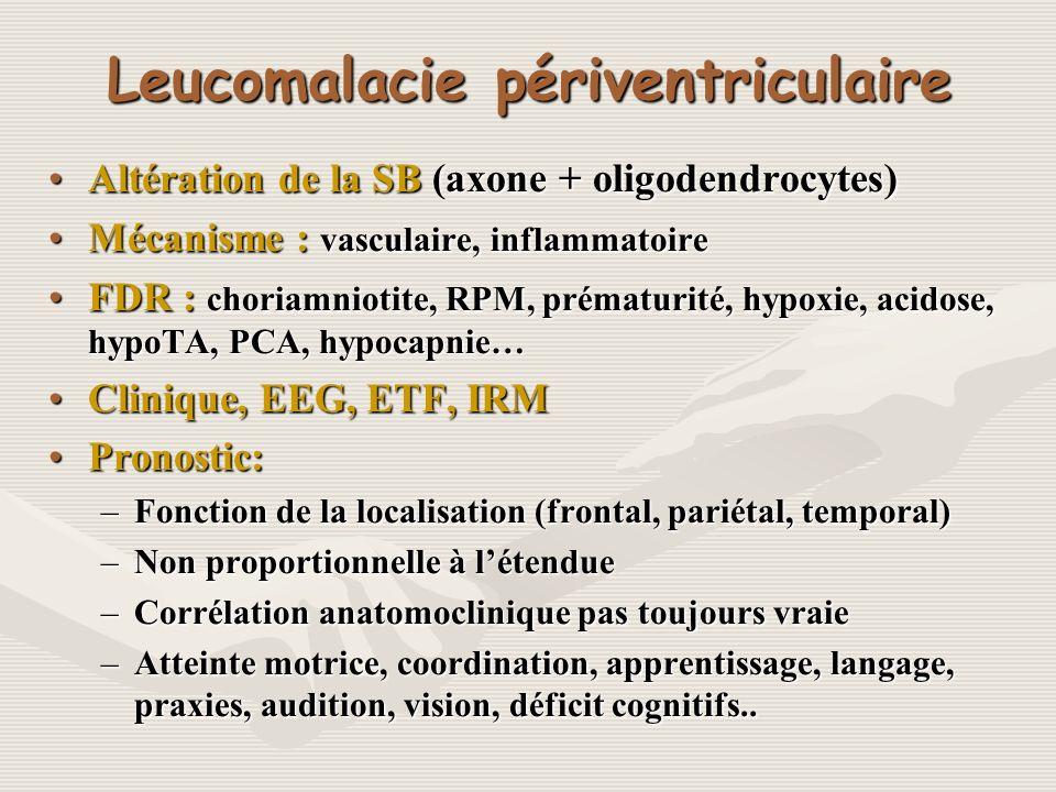 Leucomalacie périventriculaire
