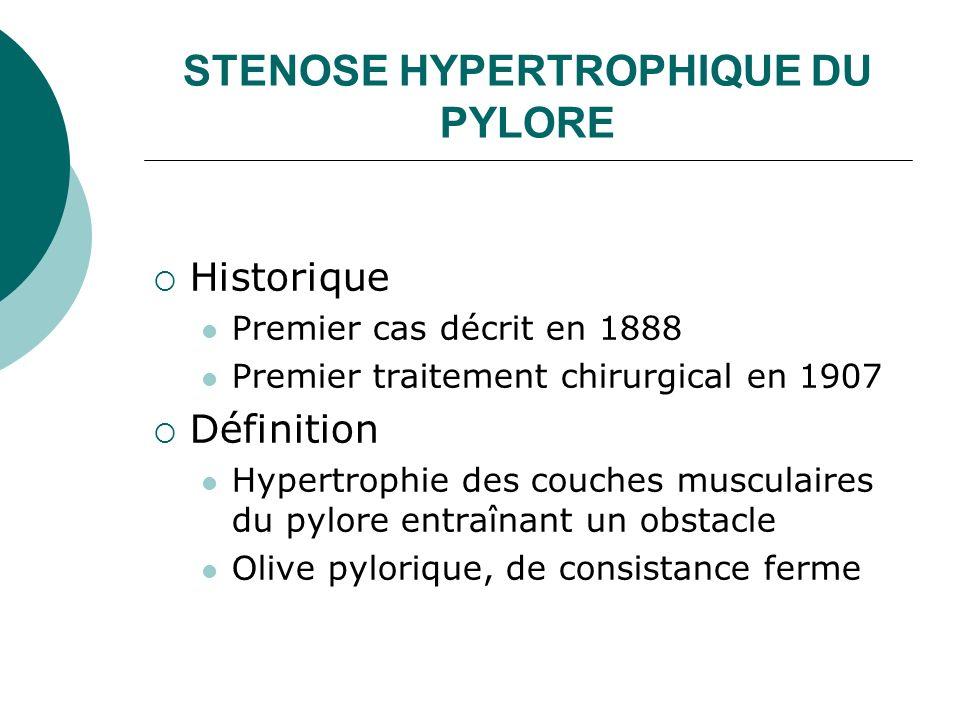 STENOSE HYPERTROPHIQUE DU PYLORE