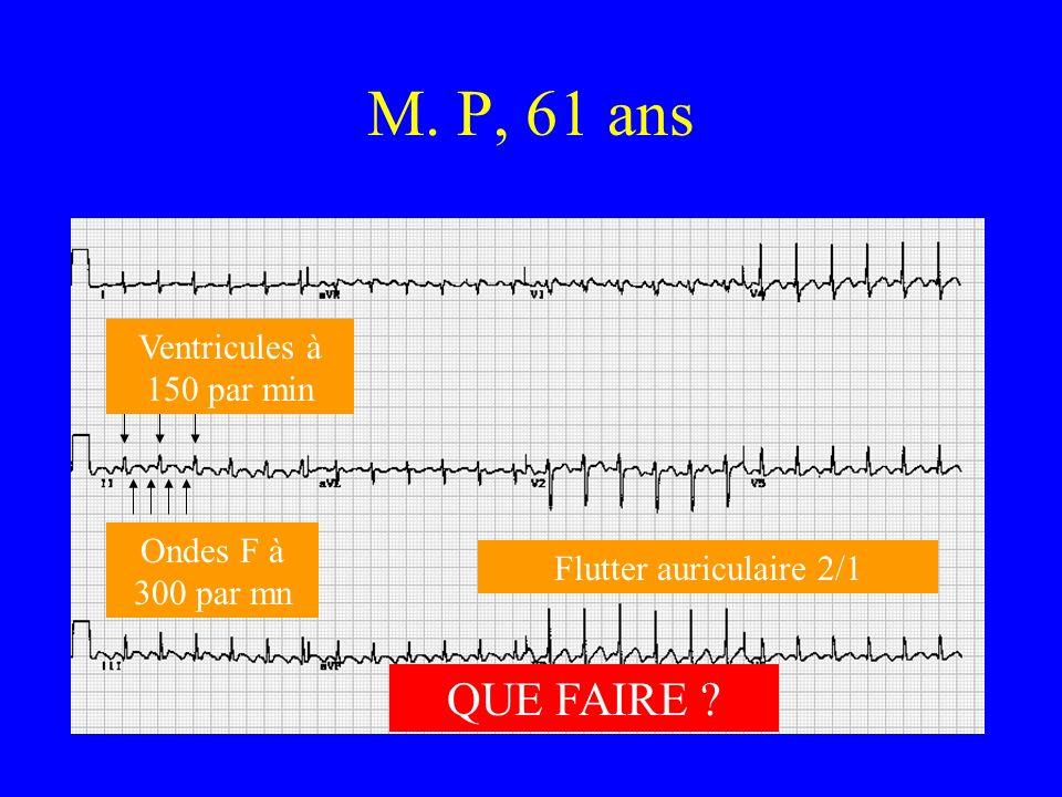 M. P, 61 ans QUE FAIRE Ventricules à 150 par min