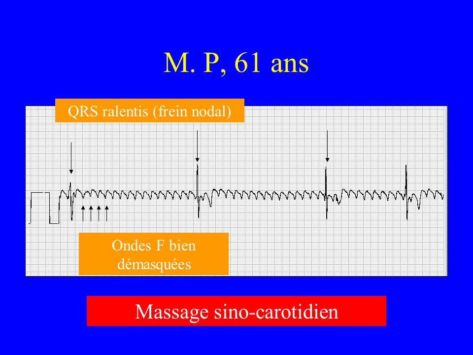 M. P, 61 ans Massage sino-carotidien QRS ralentis (frein nodal)