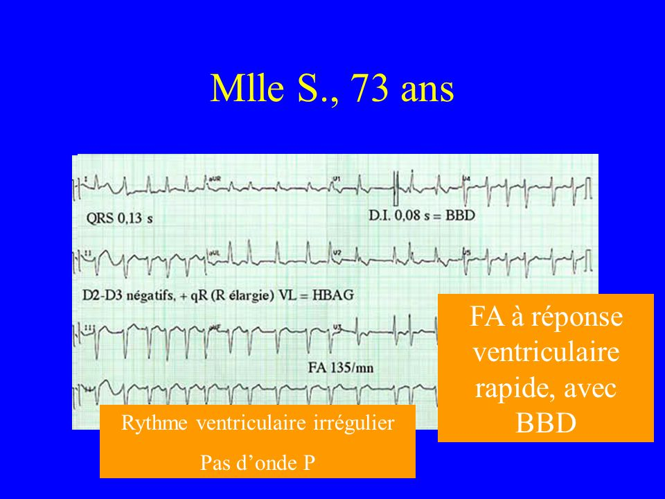 Mlle S., 73 ans FA à réponse ventriculaire rapide, avec BBD