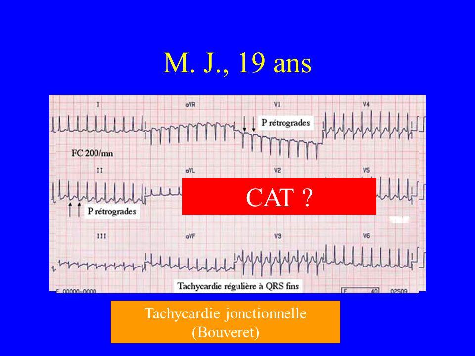 Tachycardie jonctionnelle (Bouveret)