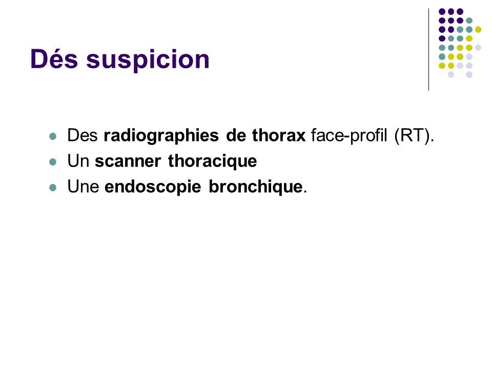Dés suspicion Des radiographies de thorax face-profil (RT).