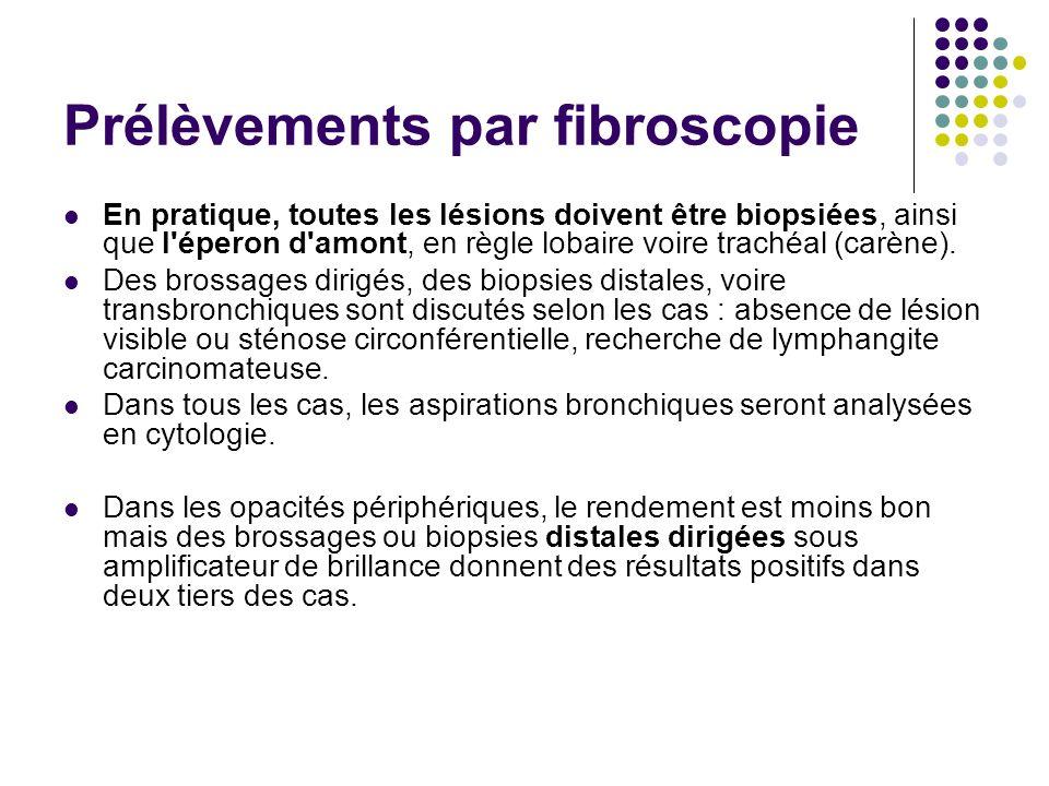 Prélèvements par fibroscopie