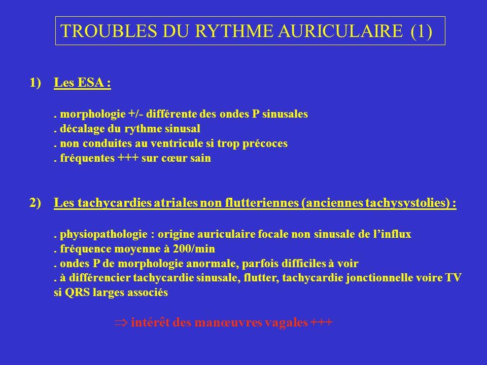 TROUBLES DU RYTHME AURICULAIRE (1)