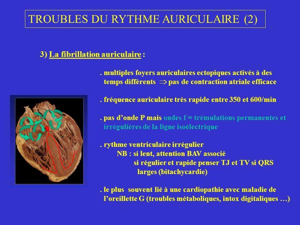 TROUBLES DU RYTHME AURICULAIRE (2)