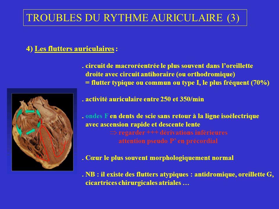 TROUBLES DU RYTHME AURICULAIRE (3)