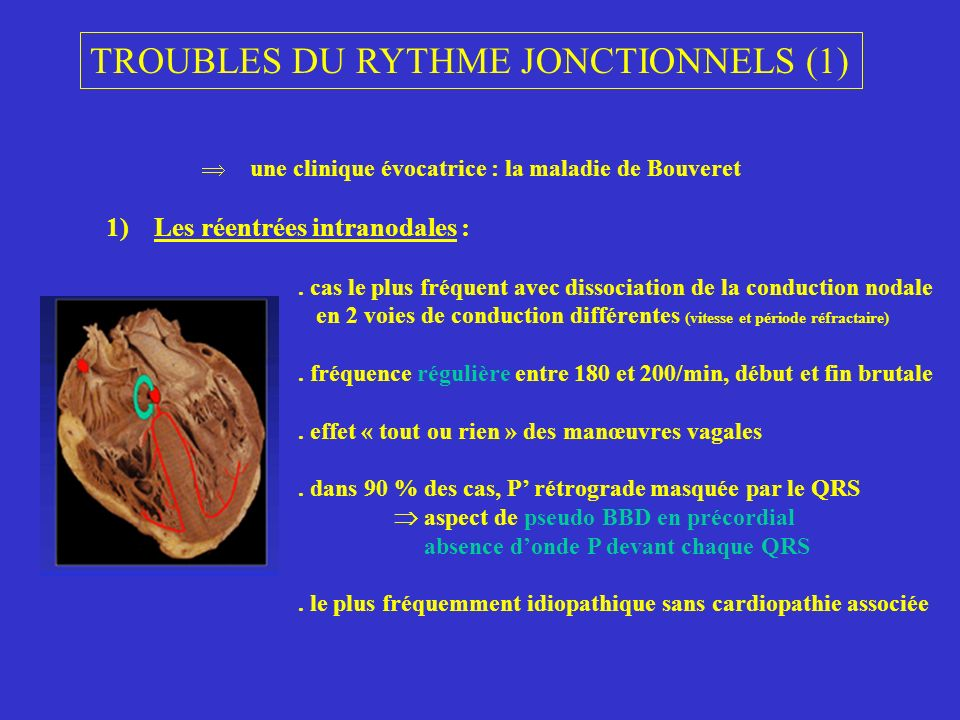 TROUBLES DU RYTHME JONCTIONNELS (1)