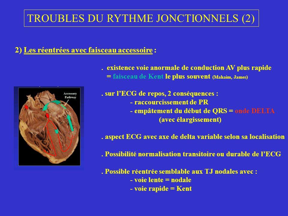 TROUBLES DU RYTHME JONCTIONNELS (2)
