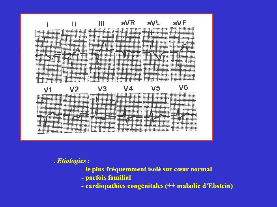 Etiologies : - le plus fréquemment isolé sur cœur normal.