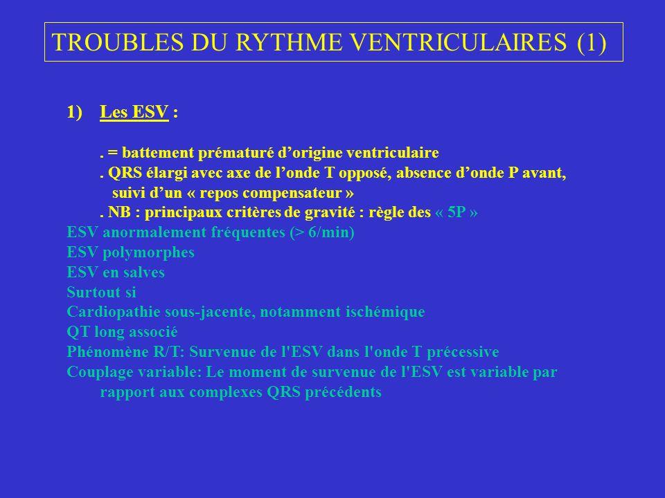 TROUBLES DU RYTHME VENTRICULAIRES (1)