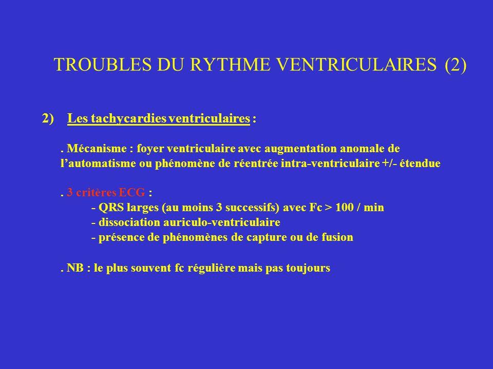 TROUBLES DU RYTHME VENTRICULAIRES (2)