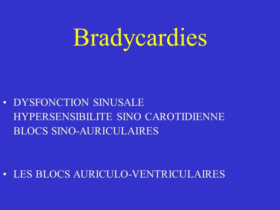 Bradycardies DYSFONCTION SINUSALE HYPERSENSIBILITE SINO CAROTIDIENNE