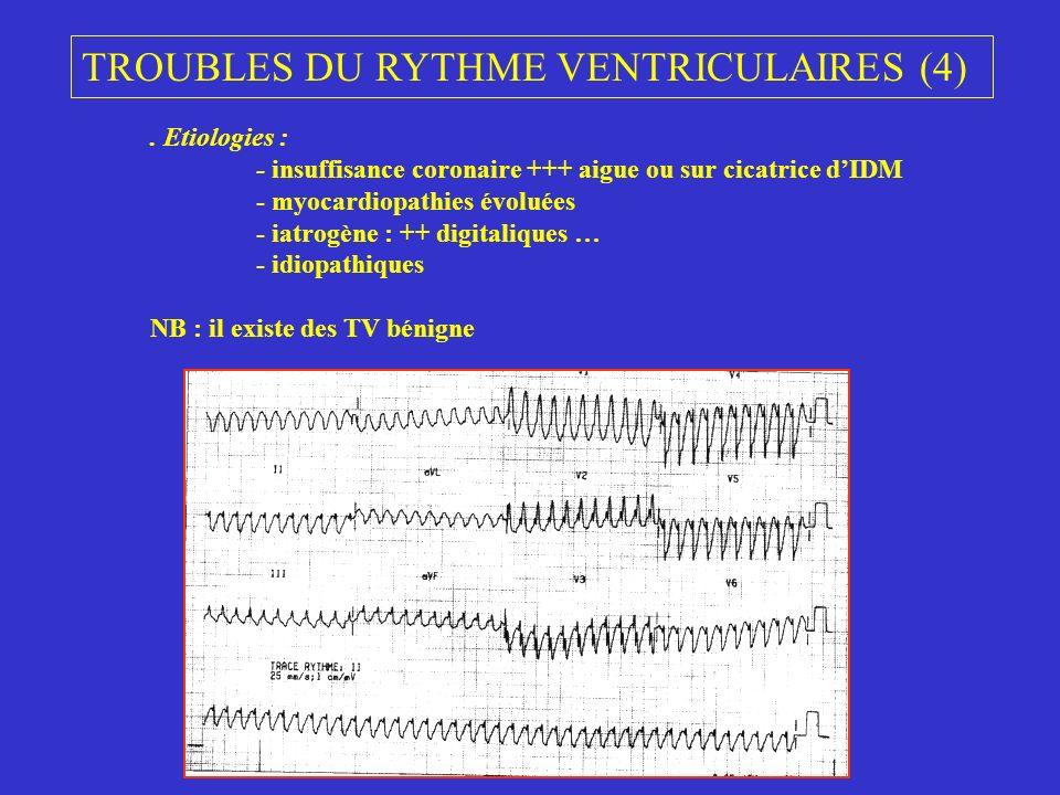 TROUBLES DU RYTHME VENTRICULAIRES (4)