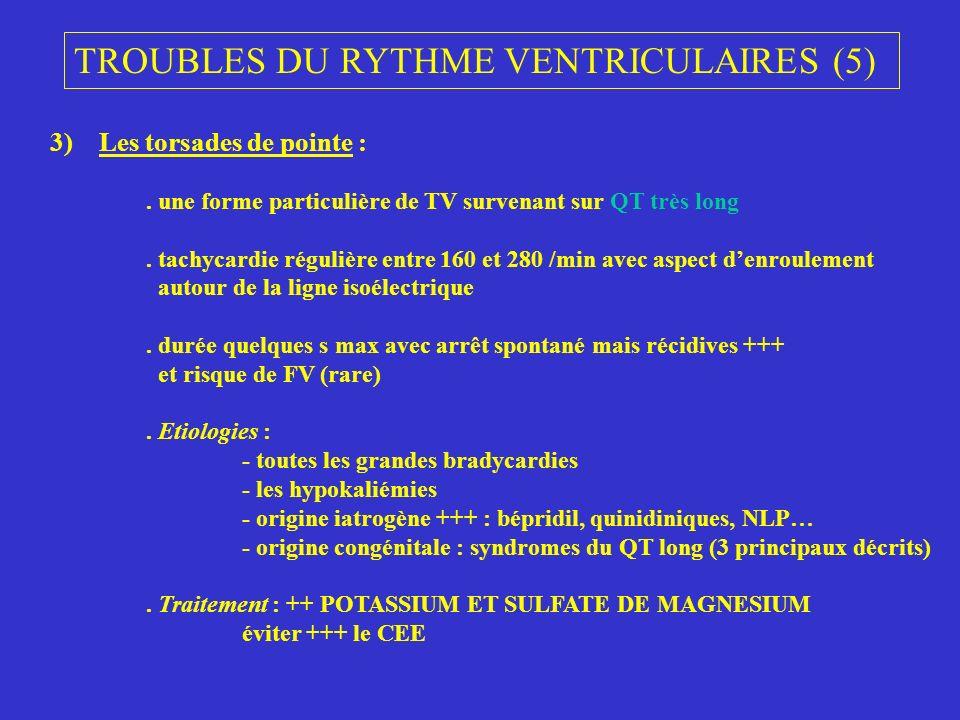 TROUBLES DU RYTHME VENTRICULAIRES (5)
