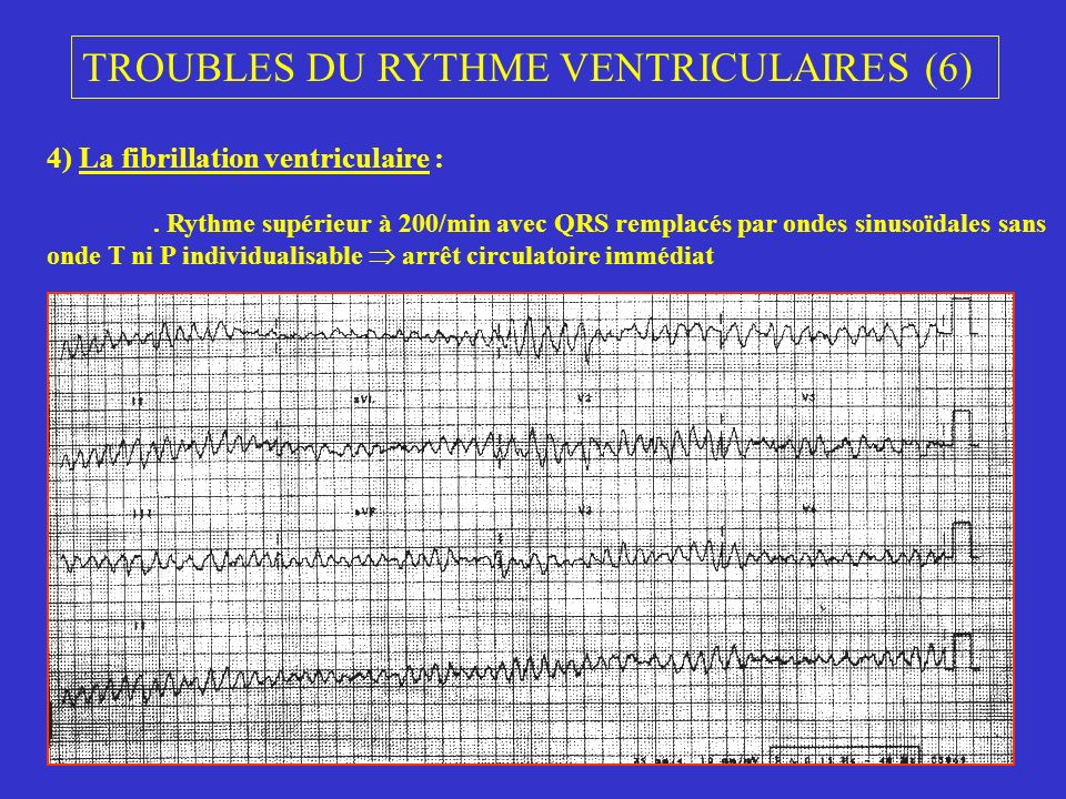 TROUBLES DU RYTHME VENTRICULAIRES (6)