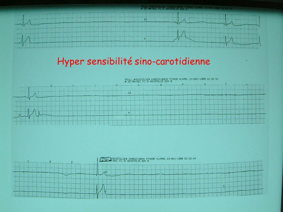 Hyper sensibilité sino-carotidienne