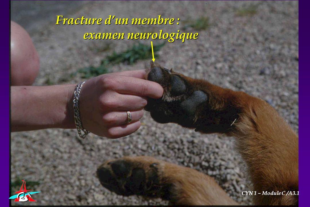 Fracture d'un membre : examen neurologique CYN 1 – Module C /A3.1