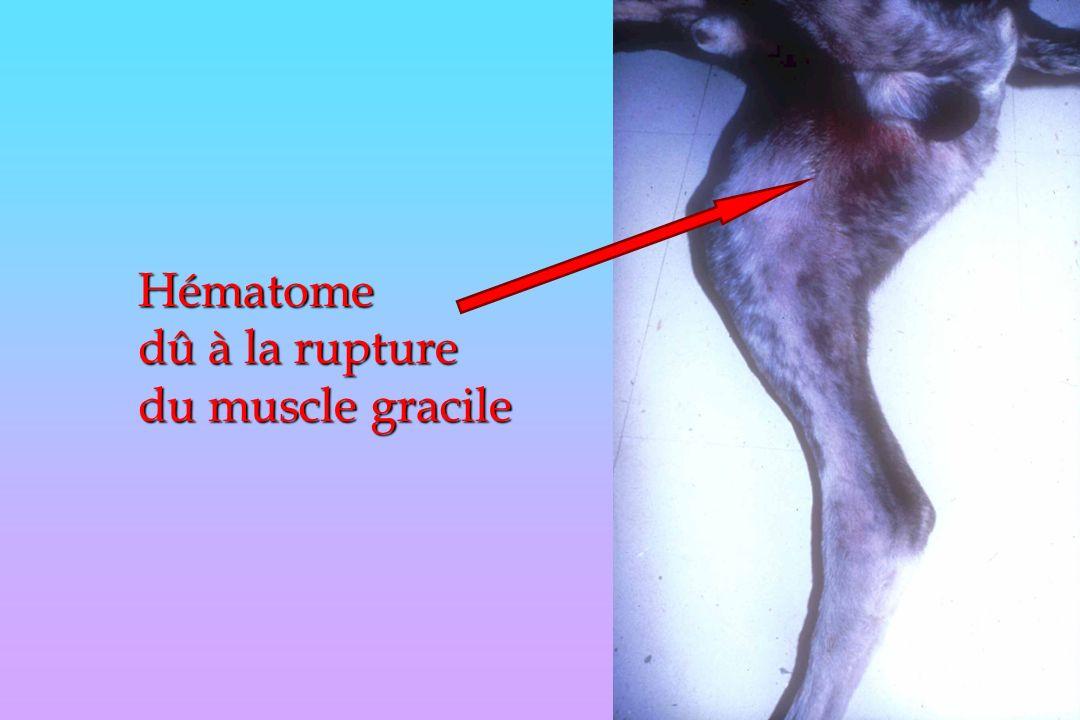 Hématome dû à la rupture du muscle gracile
