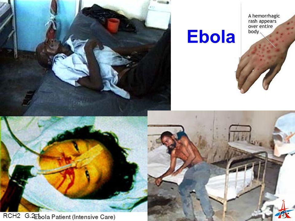 Ebola RCH2 G.2.1.
