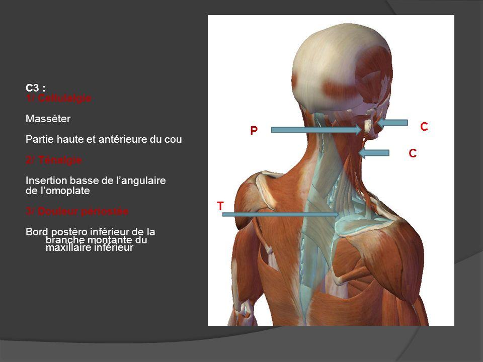 C P C T C3 : 1/ Cellulalgie Masséter Partie haute et antérieure du cou