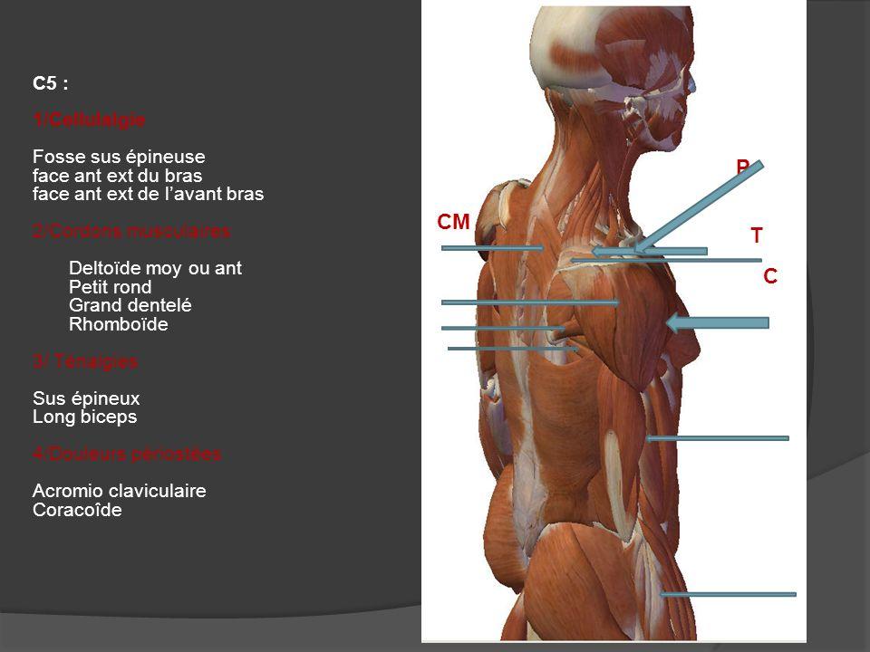 P CM T C C5 : 1/Cellulalgie Fosse sus épineuse face ant ext du bras