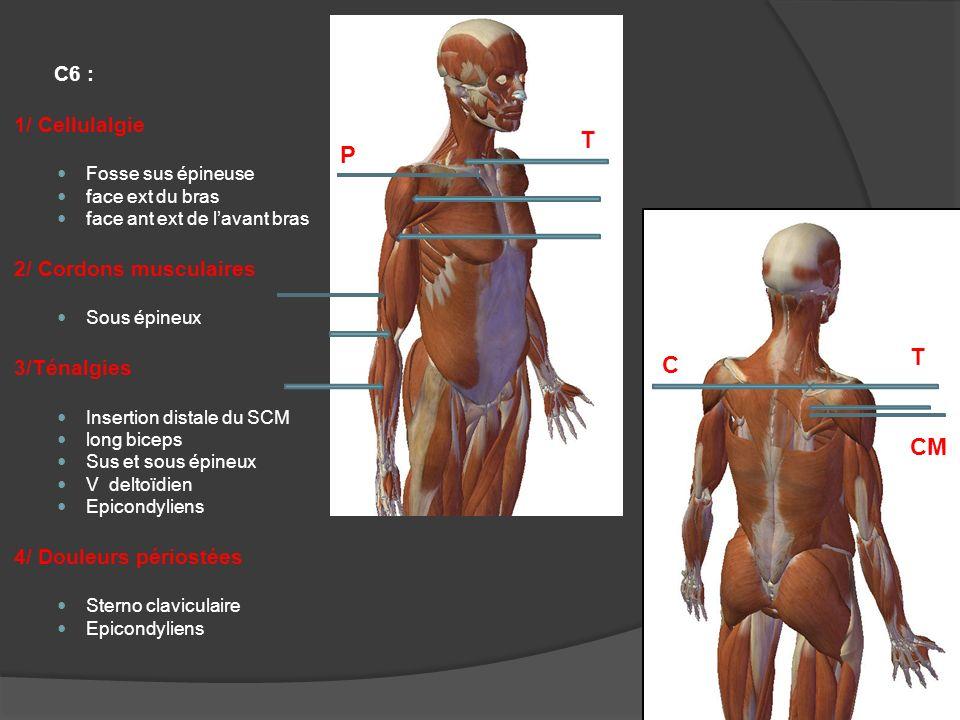 T P T C CM C6 : 1/ Cellulalgie 2/ Cordons musculaires 3/Ténalgies