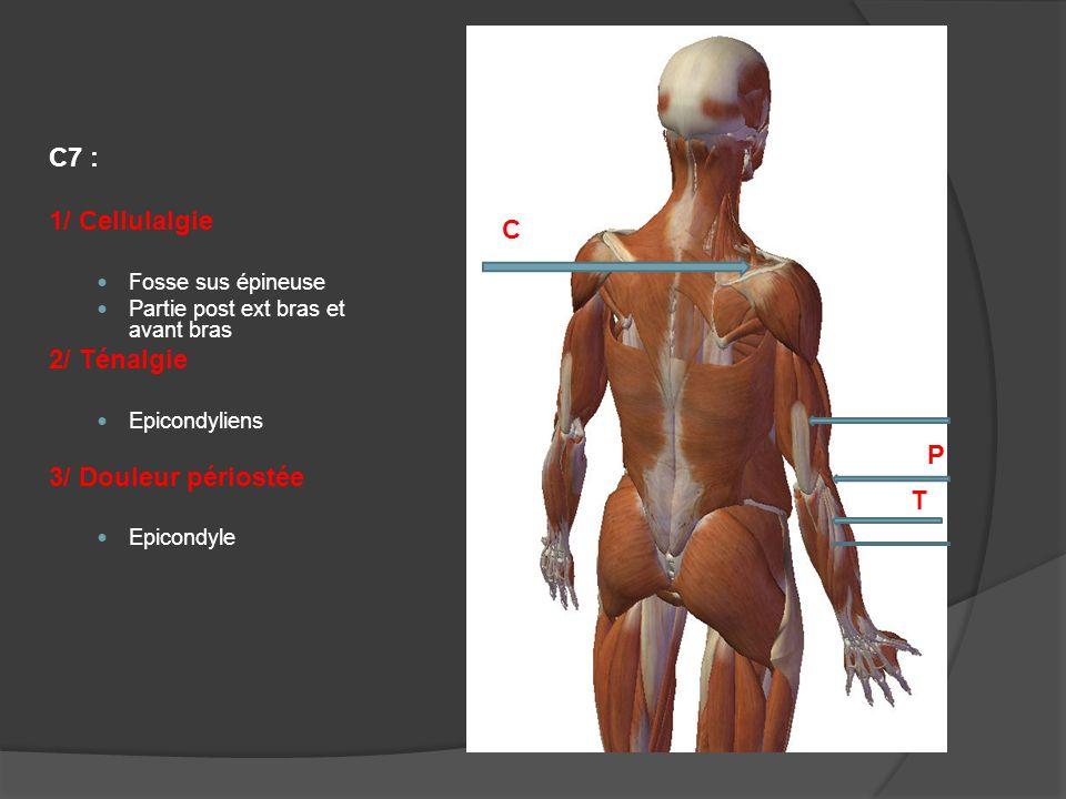 C7 : 1/ Cellulalgie C 2/ Ténalgie 3/ Douleur périostée P T