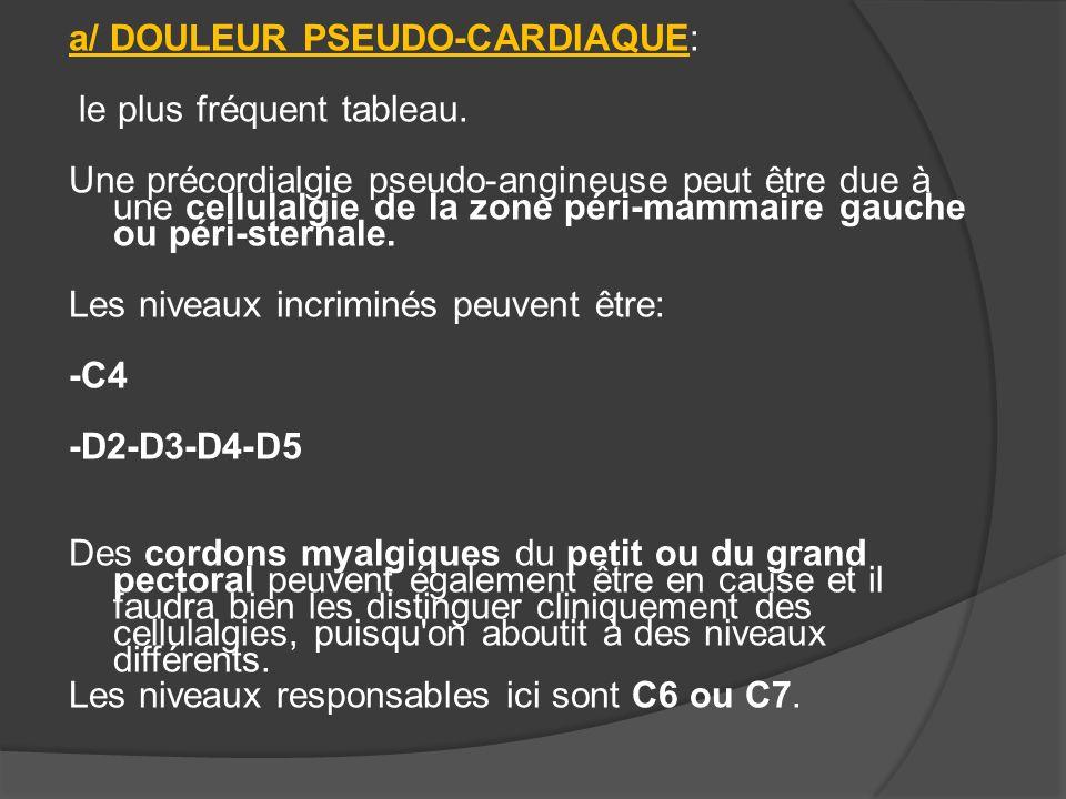 a/ DOULEUR PSEUDO-CARDIAQUE: