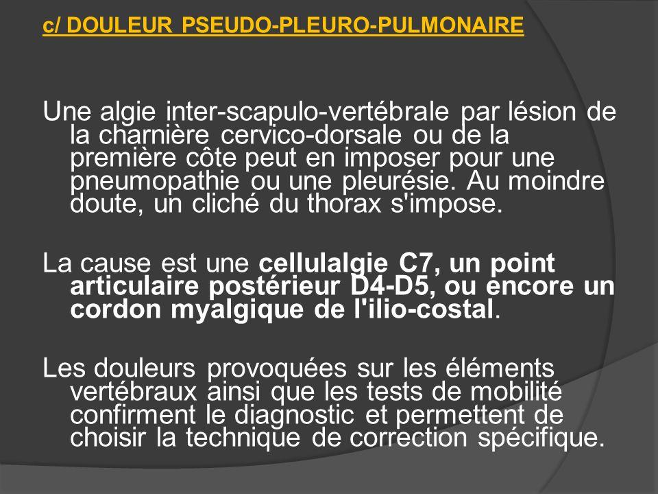 c/ DOULEUR PSEUDO-PLEURO-PULMONAIRE