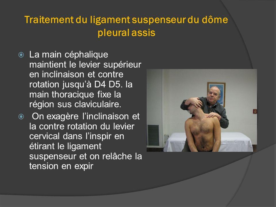 Traitement du ligament suspenseur du dôme pleural assis