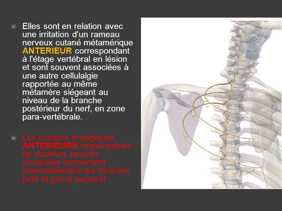 Elles sont en relation avec une irritation d un rameau nerveux cutané métamérique ANTERIEUR correspondant à l étage vertébral en lésion et sont souvent associées à une autre cellulalgie rapportée au même métamère siégeant au niveau de la branche postérieur du nerf, en zone para-vertébrale.