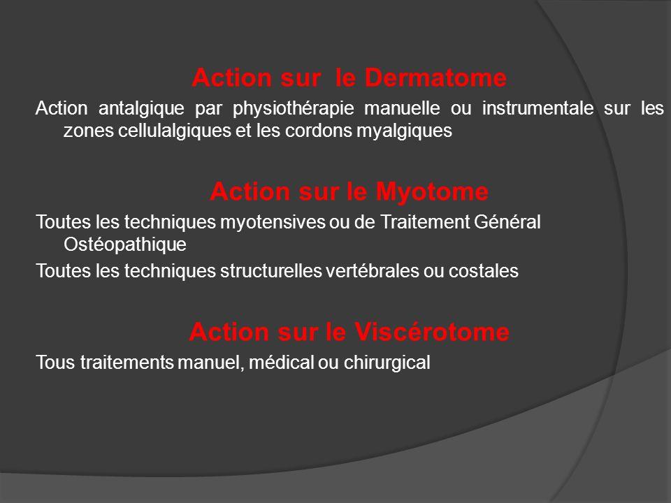Action sur le Dermatome Action sur le Viscérotome