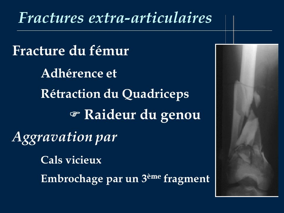 Fractures extra-articulaires