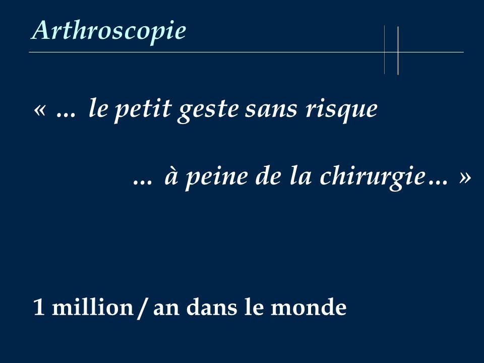 « … le petit geste sans risque … à peine de la chirurgie… »