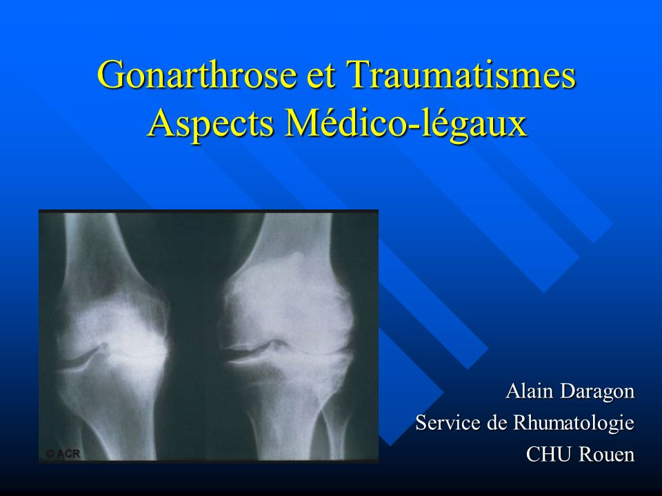 Gonarthrose et Traumatismes Aspects Médico-légaux