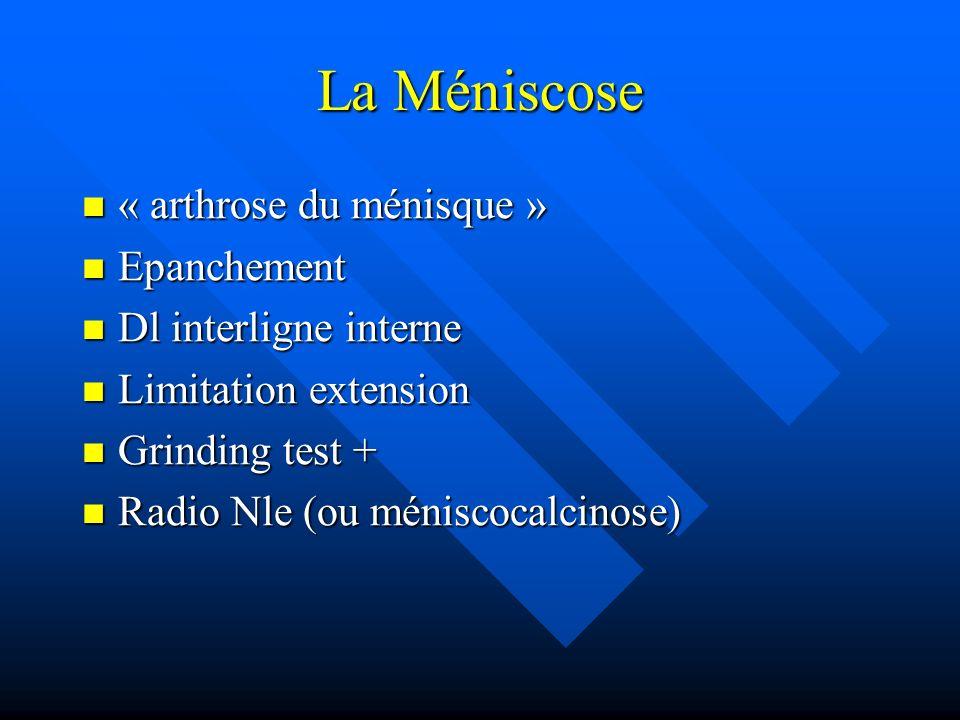 La Méniscose « arthrose du ménisque » Epanchement