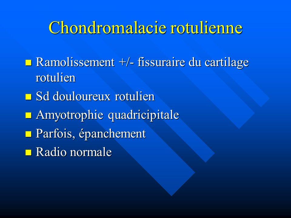Chondromalacie rotulienne