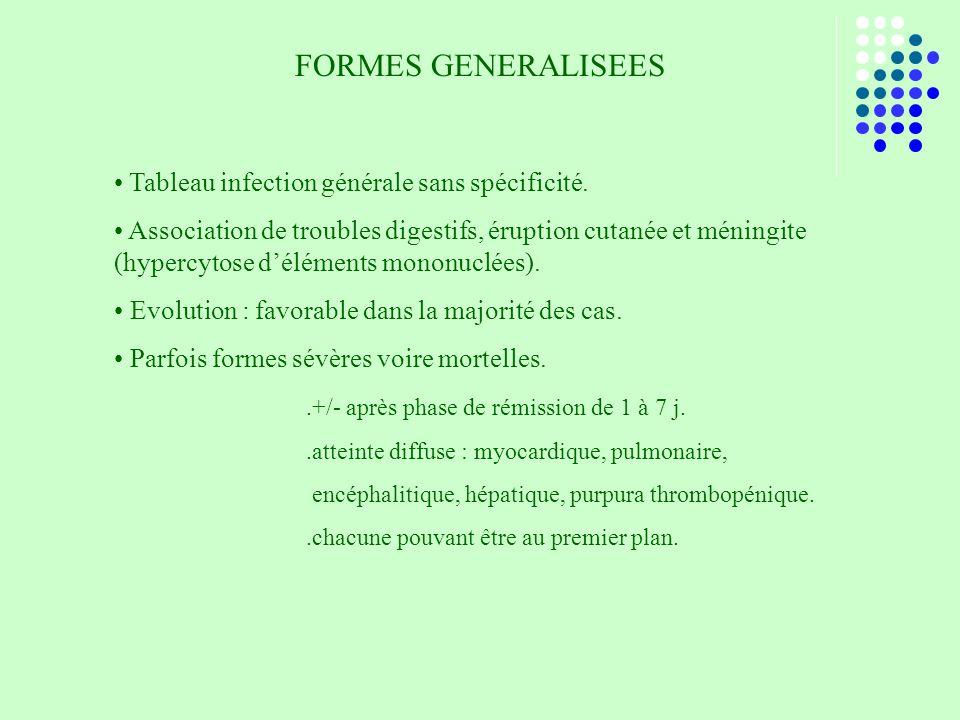 FORMES GENERALISEES Tableau infection générale sans spécificité.