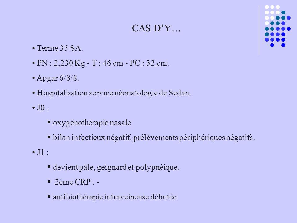 CAS D'Y… Terme 35 SA. PN : 2,230 Kg - T : 46 cm - PC : 32 cm.